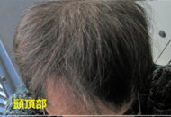 hair2019-2.png